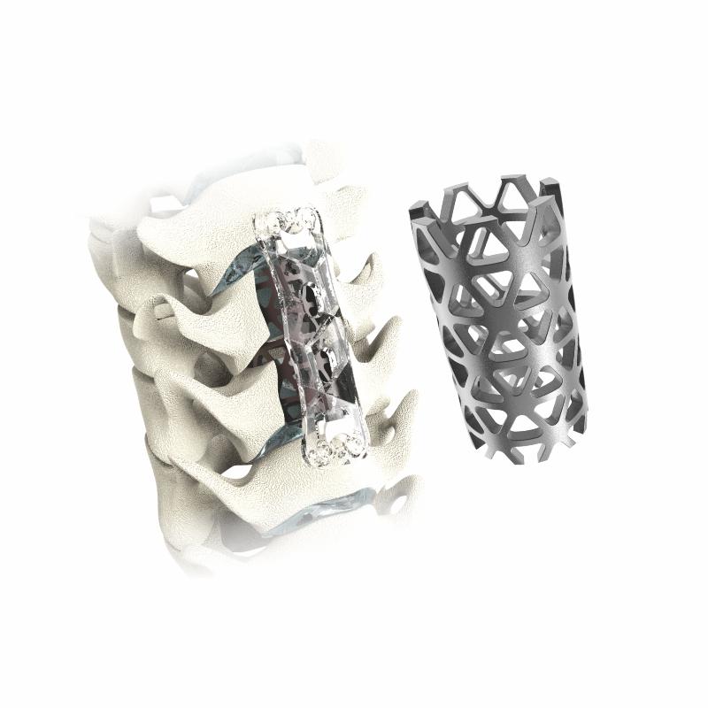 Mesh Cage in Titanium