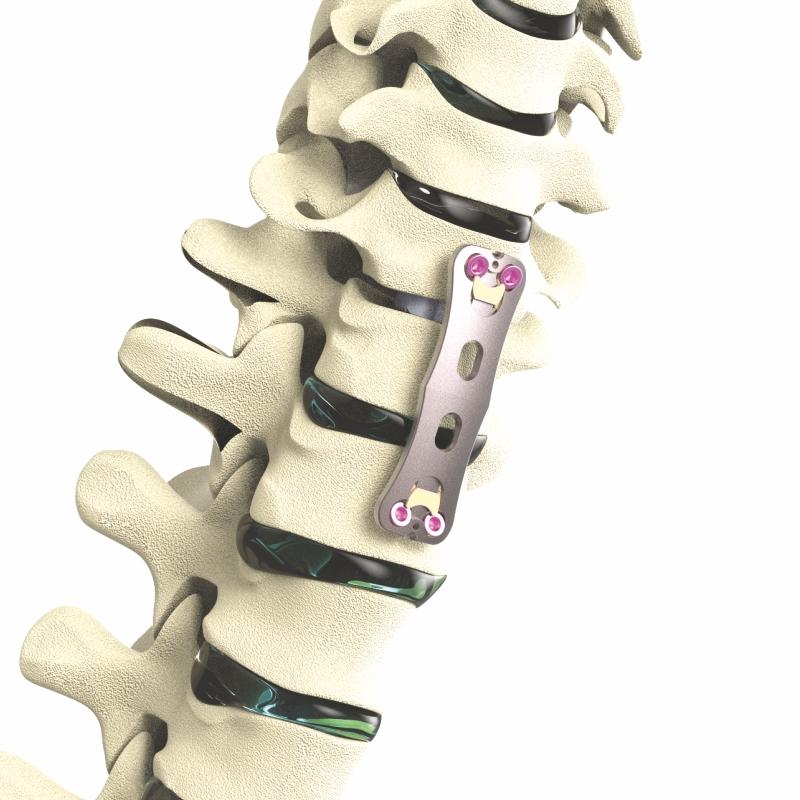 Apex Anterior Cervical Plate System in Titanium